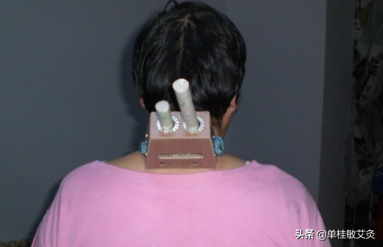 颈部不适多是寒冷引起,您可以艾灸治疗