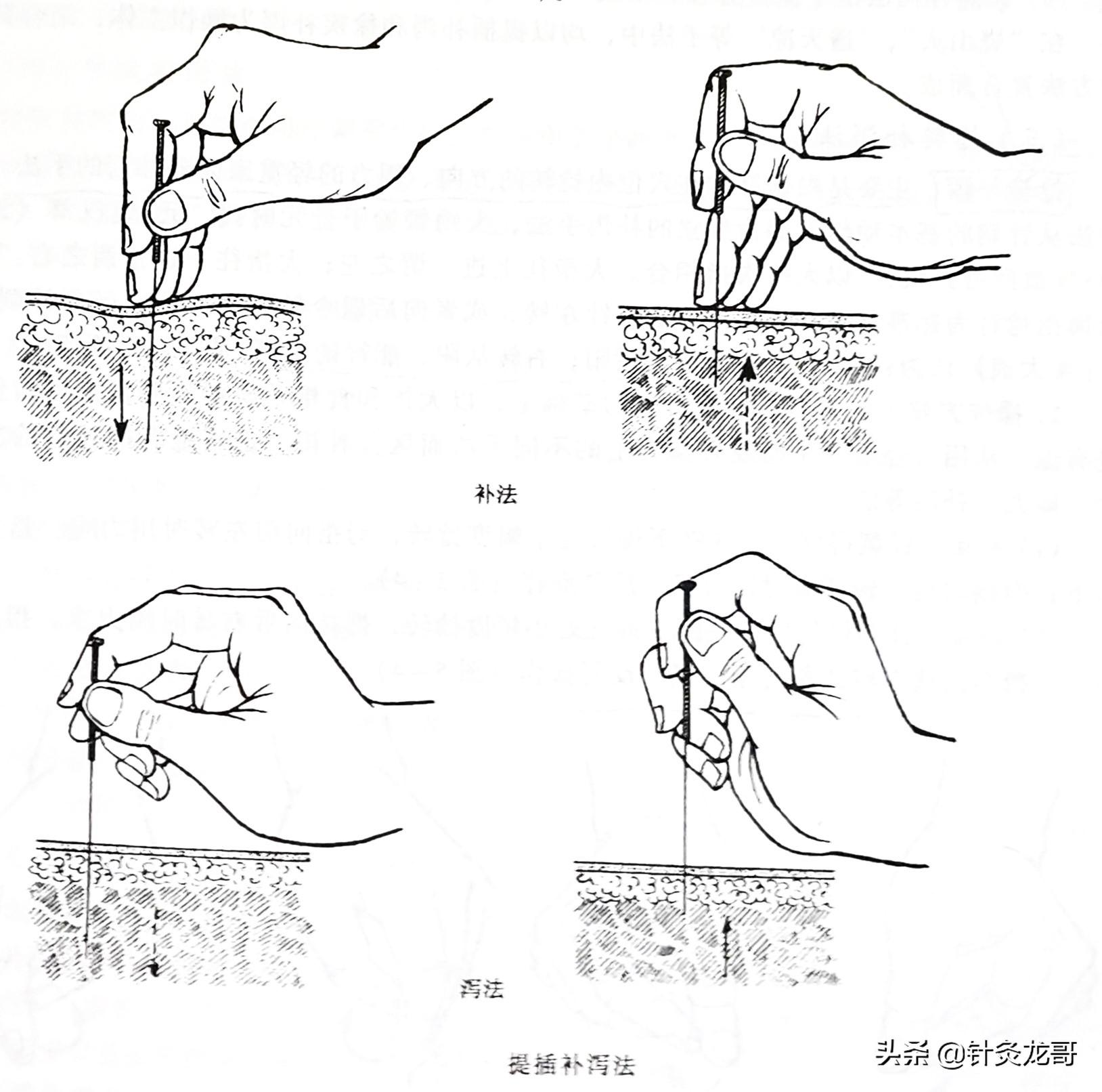 针灸常用补泻手法介绍,建议初学者收藏