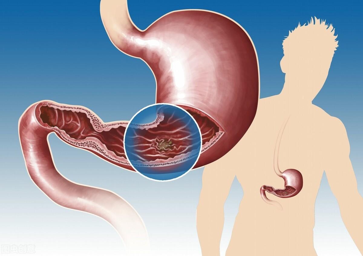 胃溃疡与药物有关?盘点胃溃疡的5大常见诱因,早了解早预防
