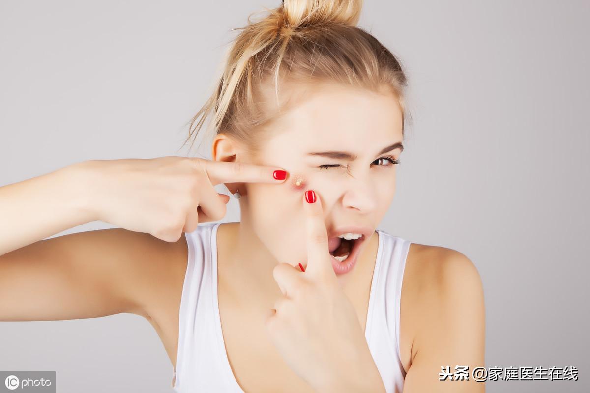 如何护理及治疗青春痘?听听皮肤科专家的意见
